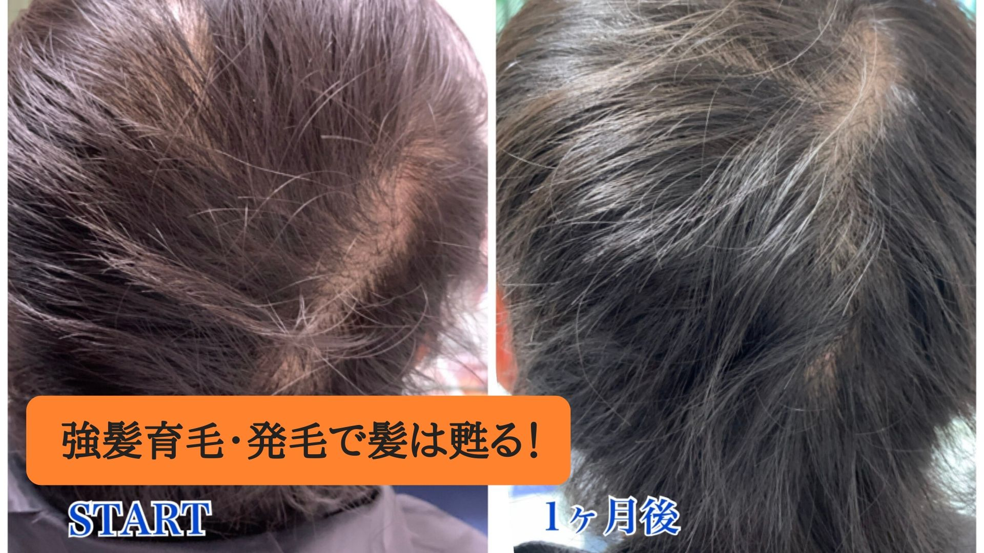 強髪育毛・発毛で髪は甦る!