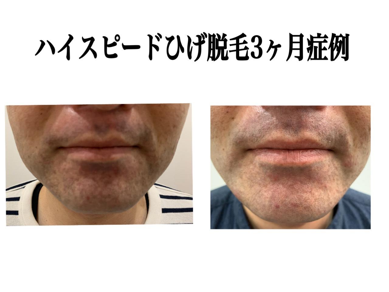ハイスピードひげ脱毛3ヶ月症例