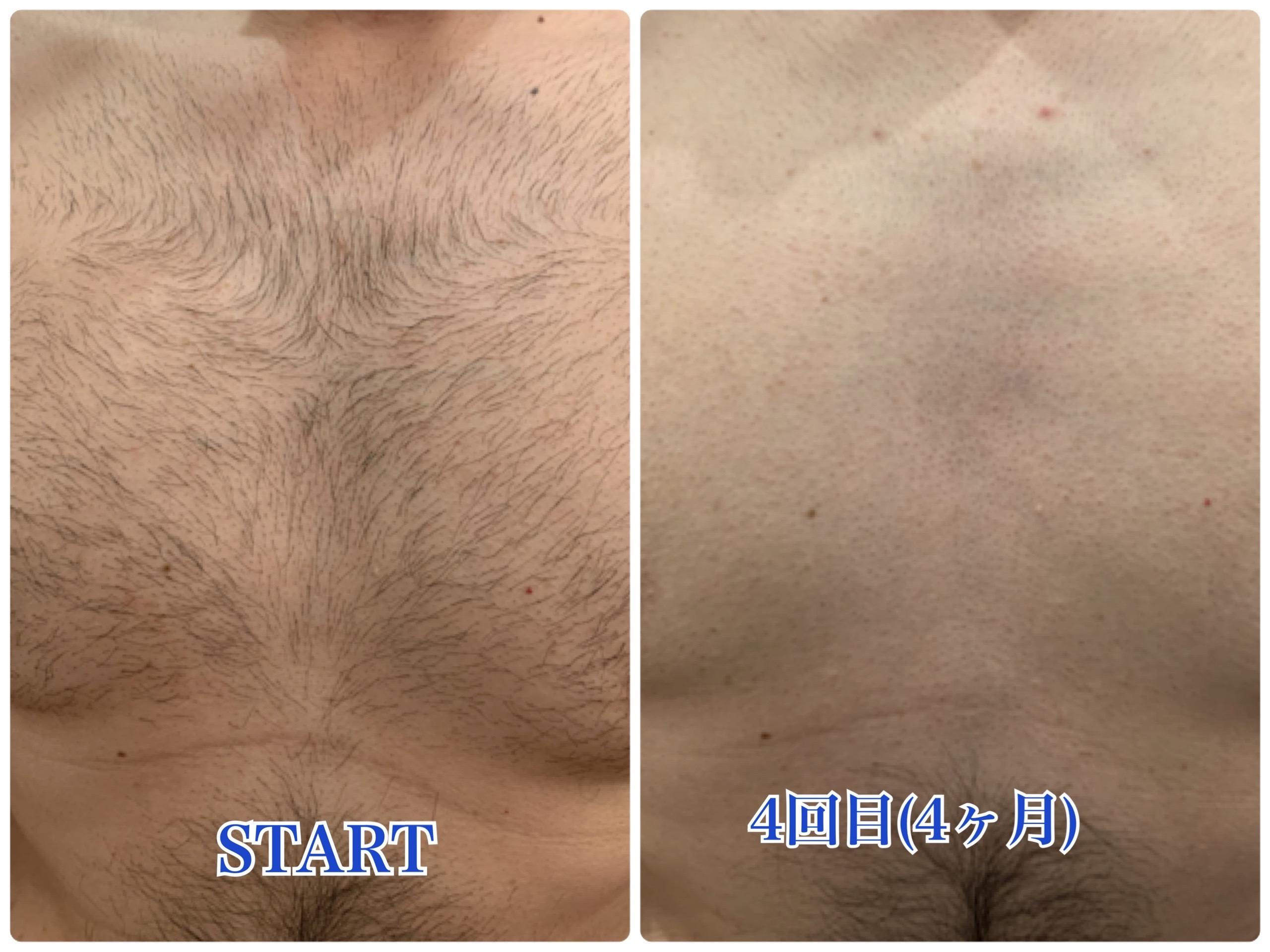 胸毛脱毛症例(4回)
