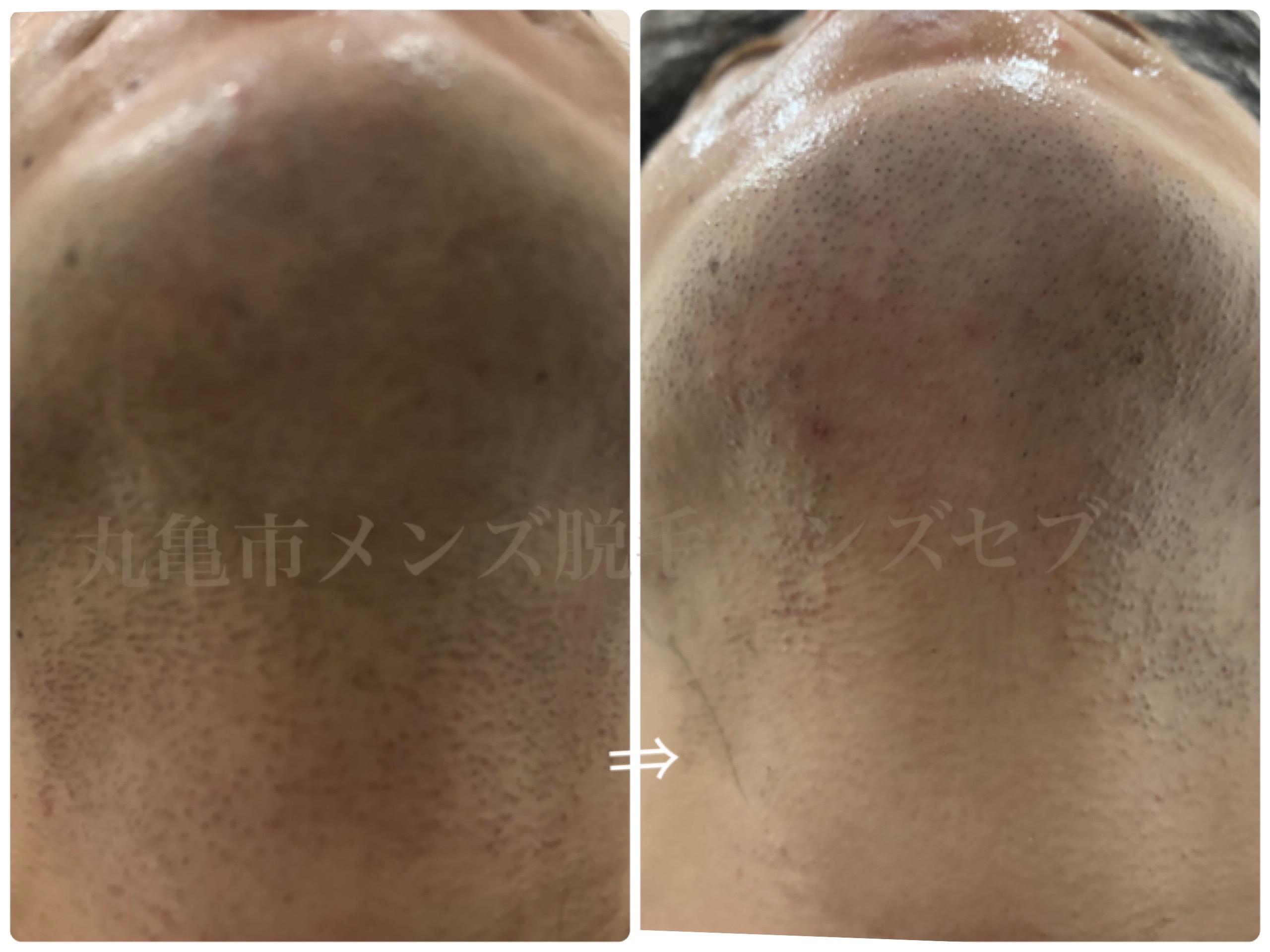メンズセブンひげ脱毛症例