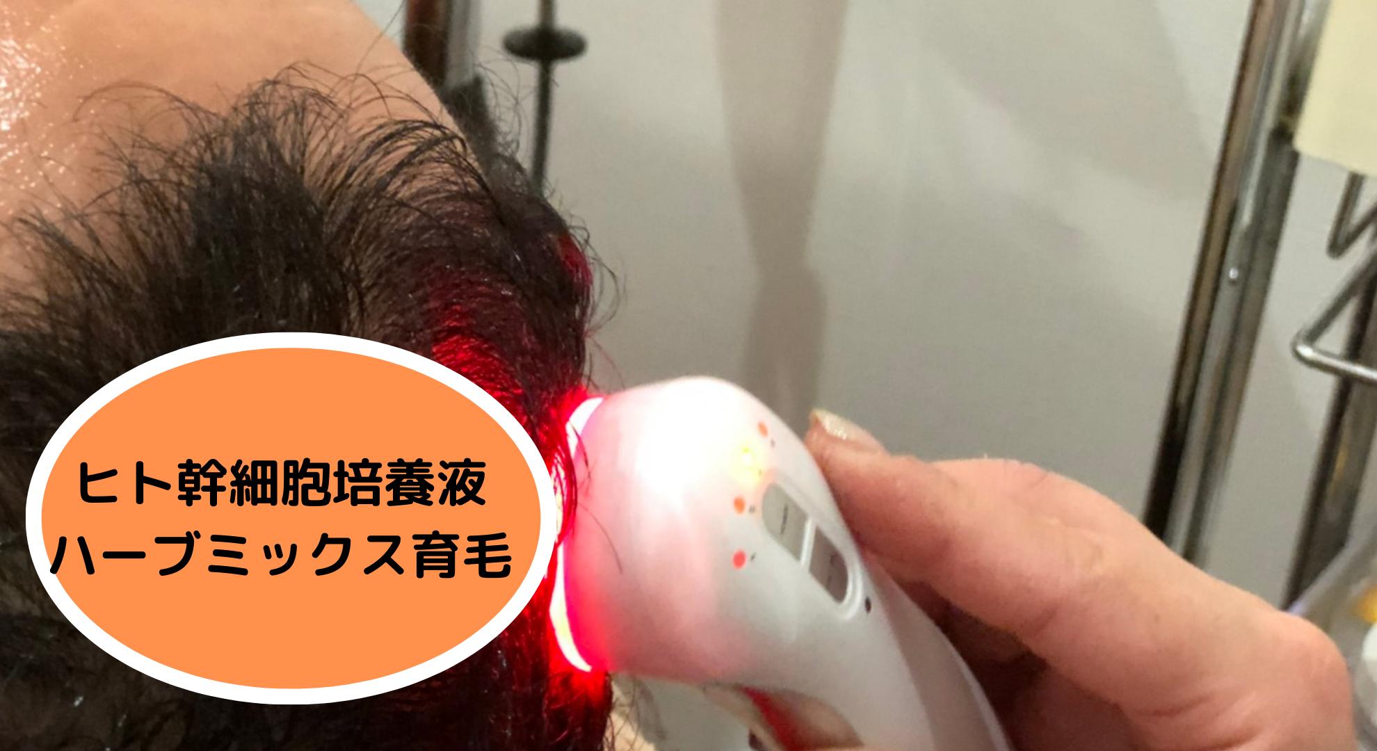 ヒト幹細胞培養液ハーブミックス育毛