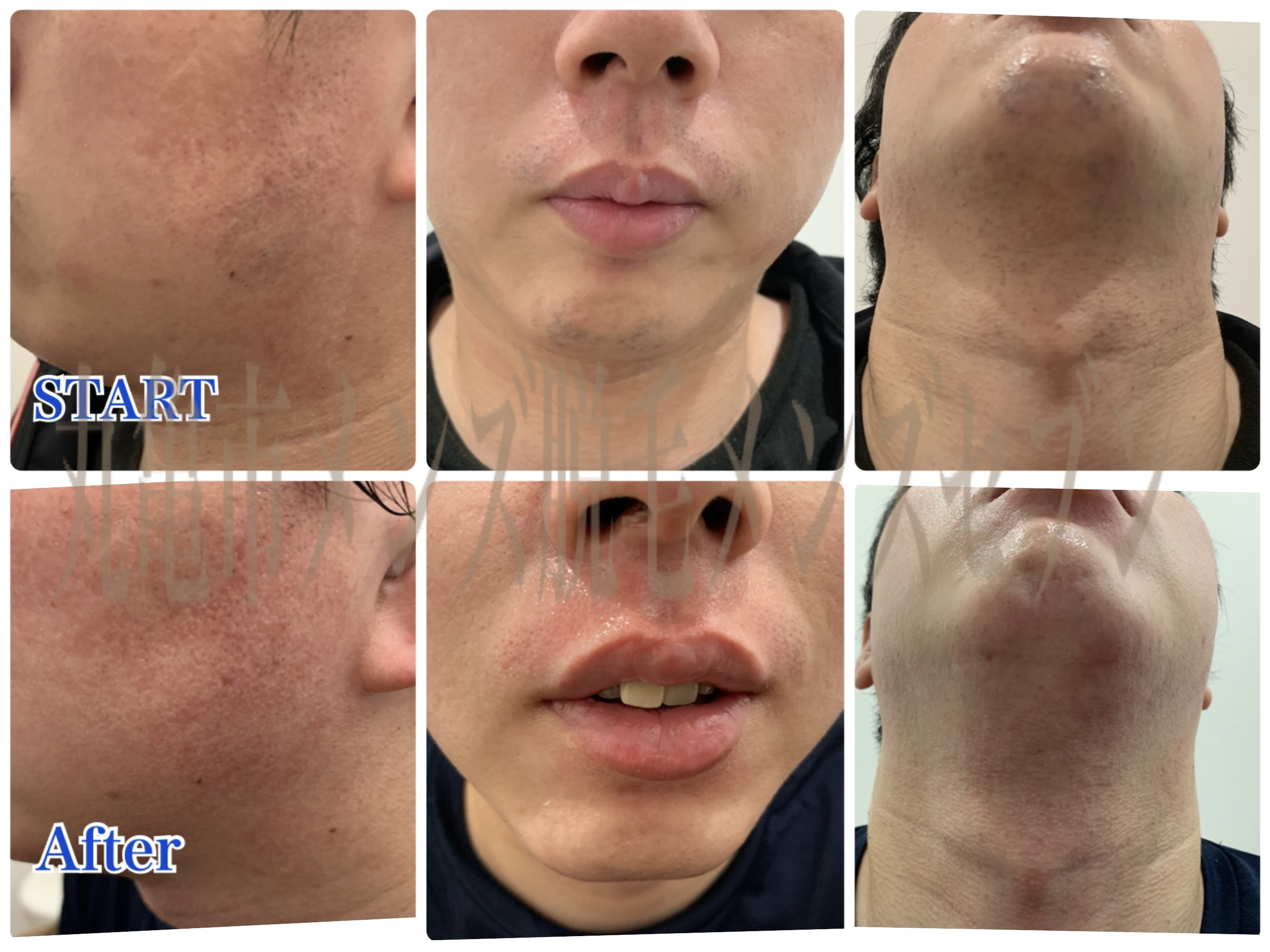 ハイスピ-ドひげ脱毛症例