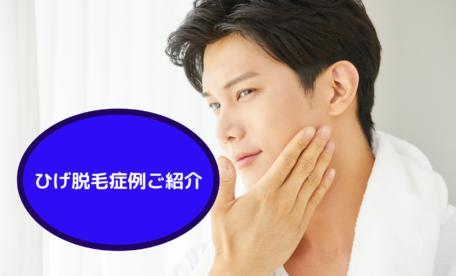 ひげ脱毛症例ご紹介