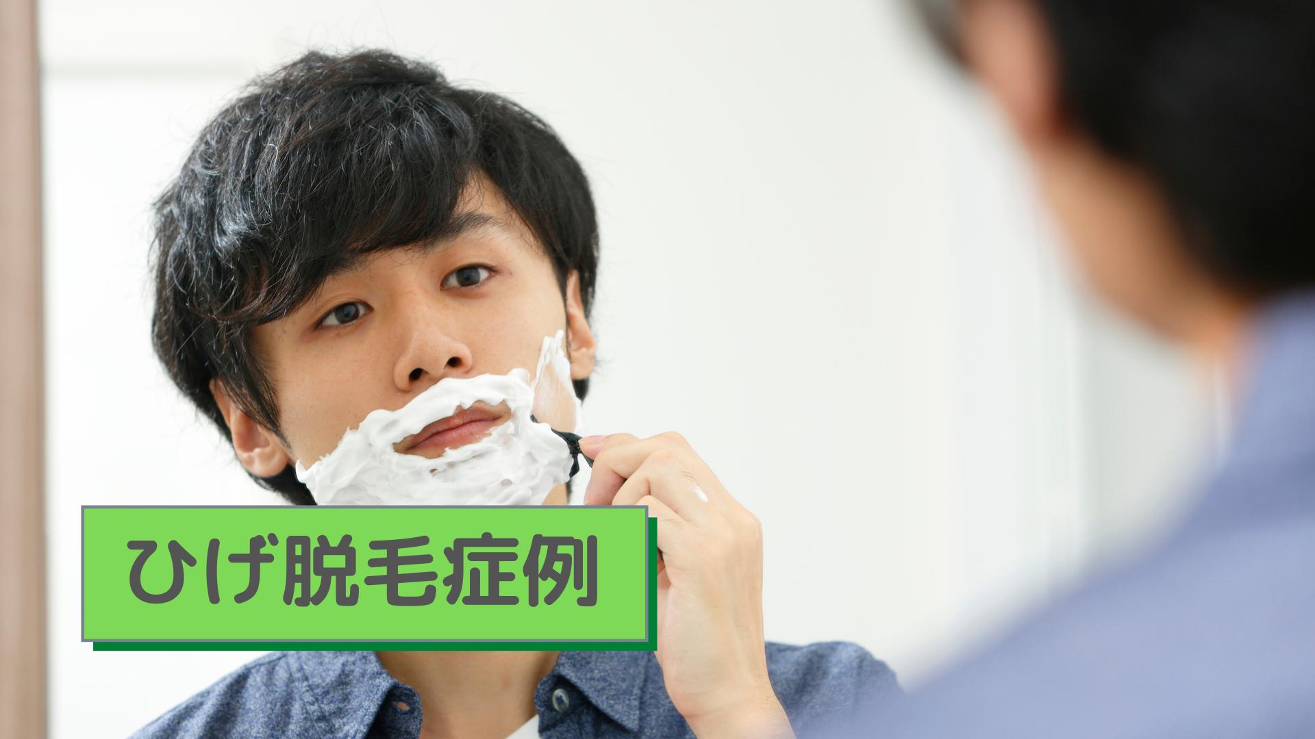 ひげ脱毛症例