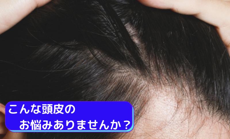 こんな頭皮のお悩みありませんか?