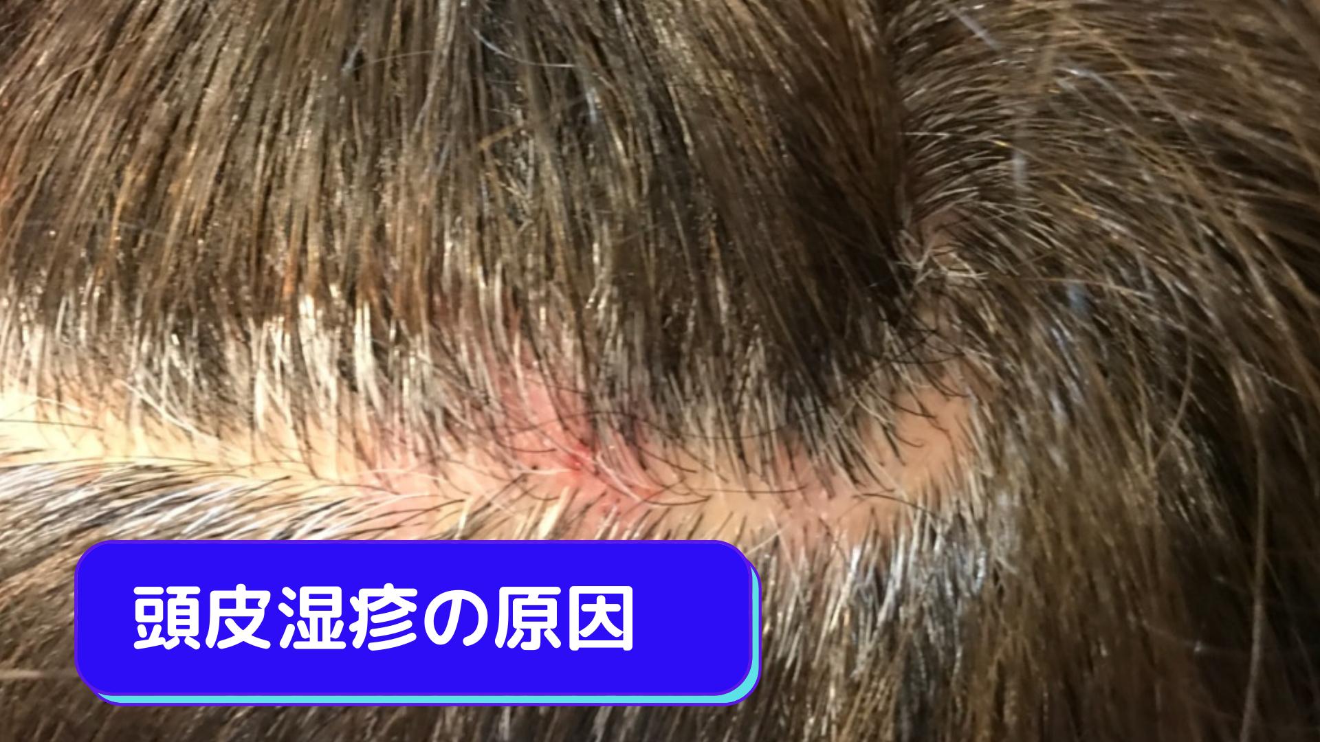 頭皮湿疹の原因